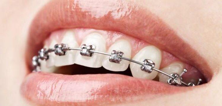 Orthodontie in Kootwijkerbroek