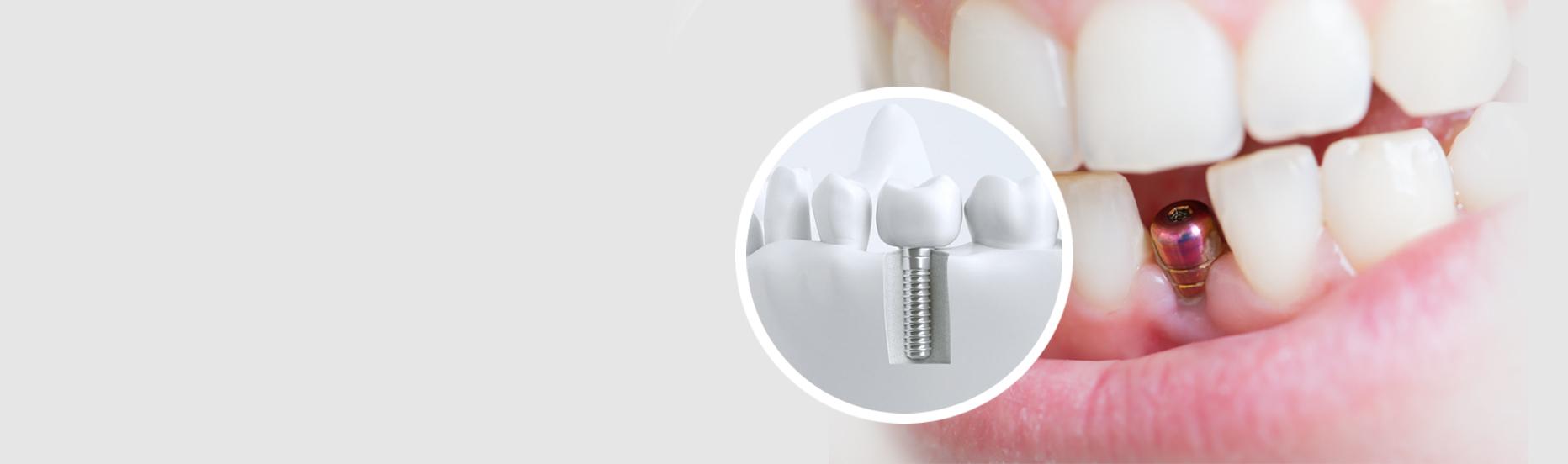 Slider-implantologie